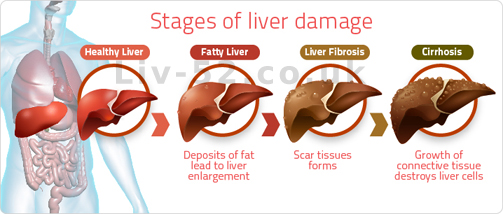 liv 52 drops unparalleled in liver care